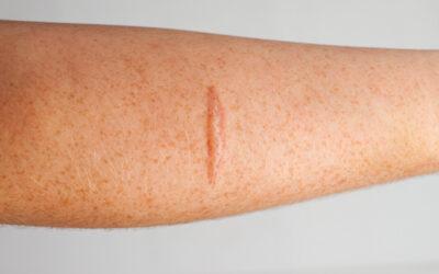 Cicatrices por Quemaduras