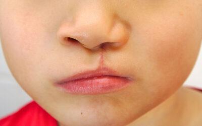 Cicatrices Post Cirugías Facial y Corporal