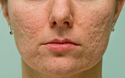 Cicatrices y Manchas de Acné Facial y Corporal